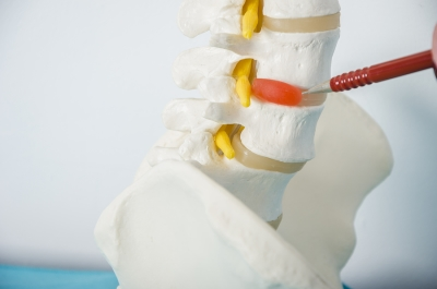 model of spine with herniated disc